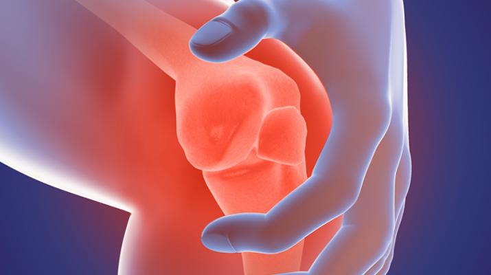 Rheumatoid arthriits