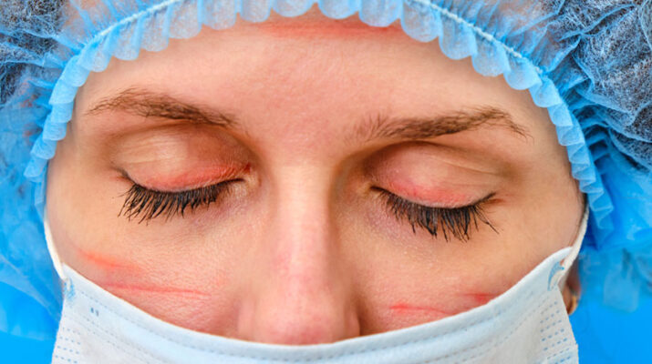 Some medical professionals are experiencing skin abrasions and breakouts from long-term mask wearing.