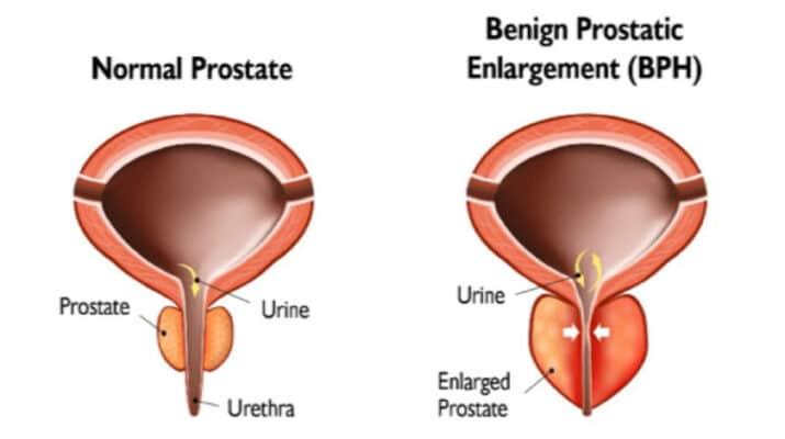 Figure 1: Benign prostatic enlargement
